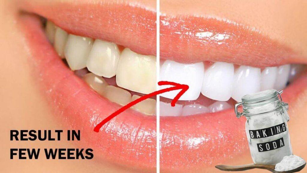 Baking Soda For Whitening Teeth