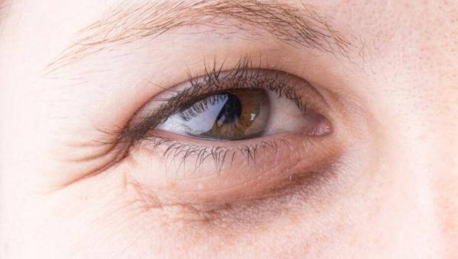 puffyy-eye-1