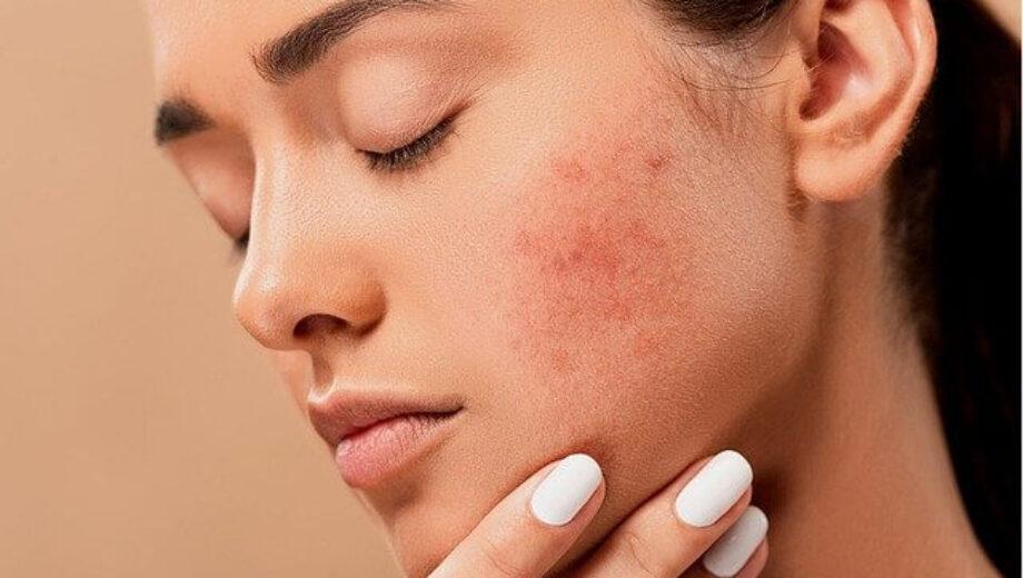 acne-5561750_640 (1)