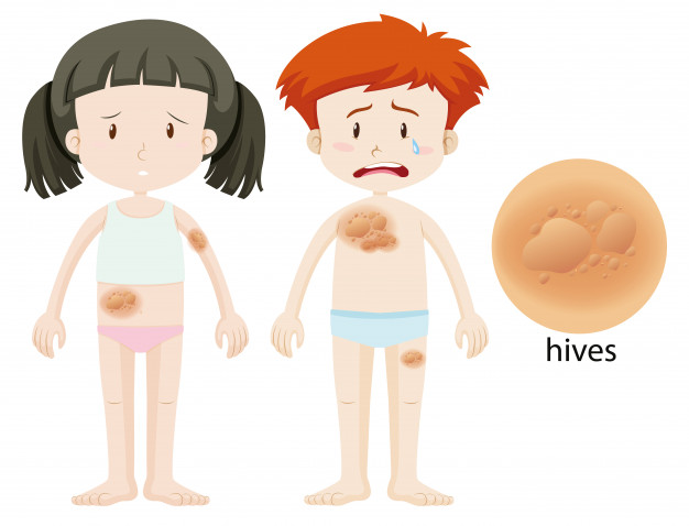 hives and skin irritation on skin