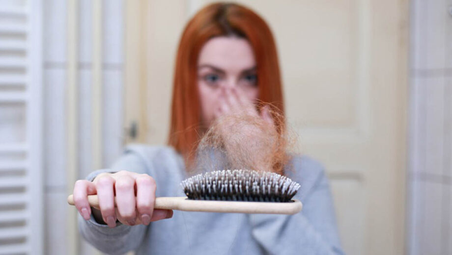 hairlossFP
