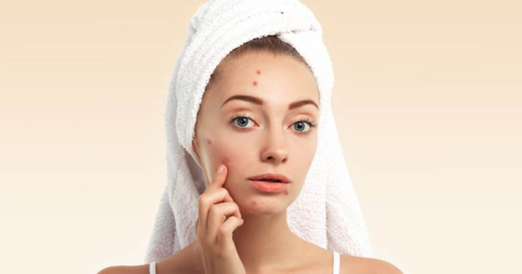 pimples on face, apply neem on the skin