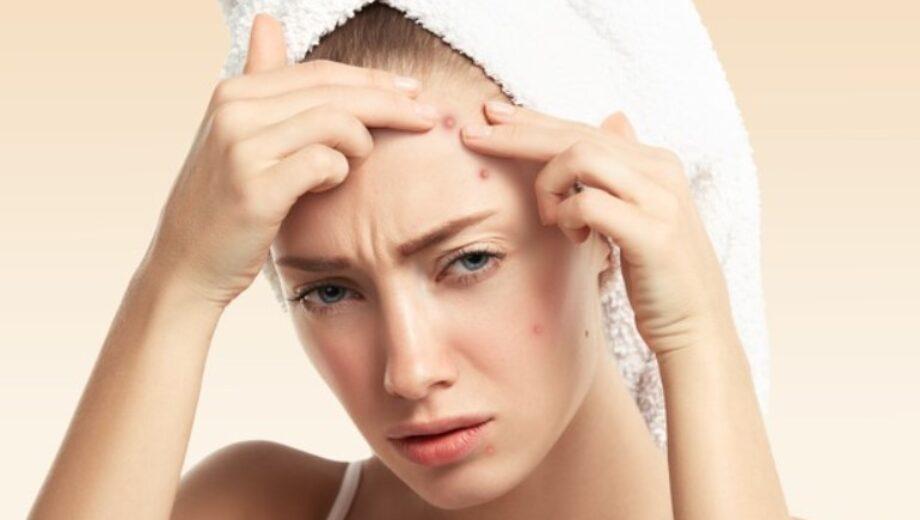 hormonal acne fig 1